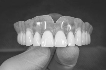 view of artificial gums and teeth