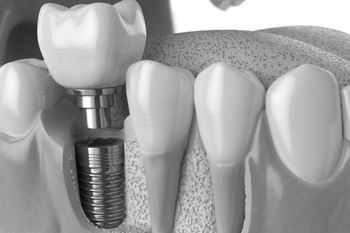 view of a dental implant